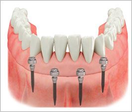 mdibiase_bocca-mini-impianti-dentali-c-tech-implant