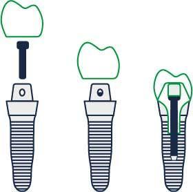 Implantą sudaro karūnėlė (matoma danties dalis), sraigtas, kuris įsukamas į kaulą ir specialus varžtas, sujungiantis karūnėle ir sraigą.