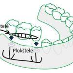 Plokšteliniai implantai