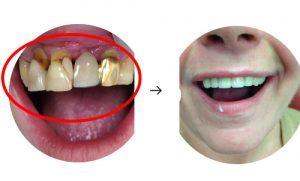 Kompleksinė problema reikalaujanti paradantozės gydymo, dantų protezų ir implantavimo