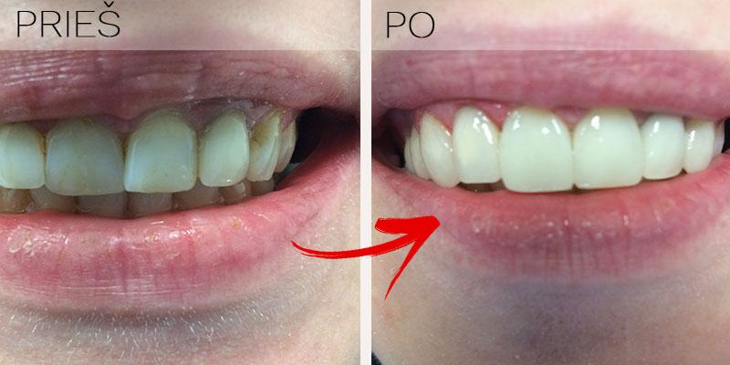 Dantų laminatės ar estetinis protezavimas