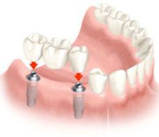 Protezavimas fiksuojamais dantų tiltais