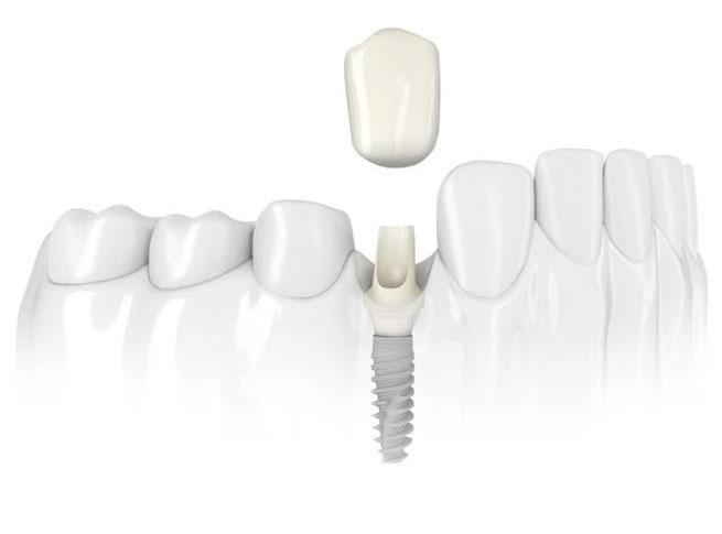 Dantų protezavimas vainikėliais ir implantais Vilniuje