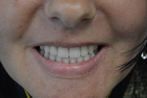 40 jahren mit zahnprothese Sprechen mit