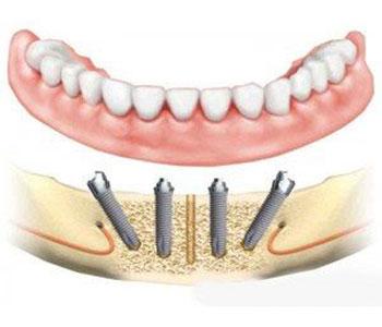 Jahren zahnprothese mit 40 ω Die