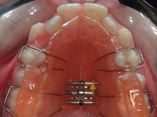 Dantų tiesinimas plokštelėmis