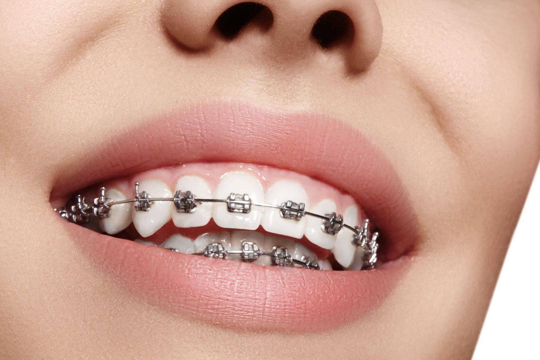 ortodontiniai aparatai
