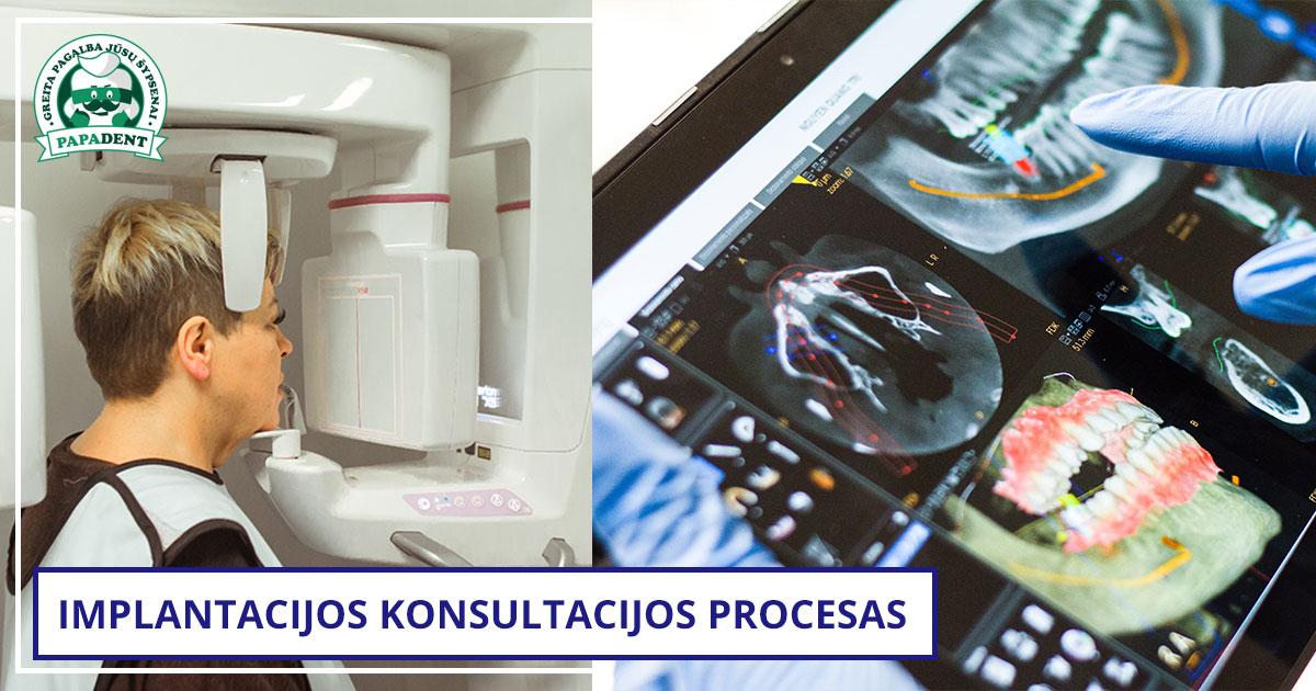 Kaip vyksta implantacijos konsultacijos procesas - Dantugydytojas.lt